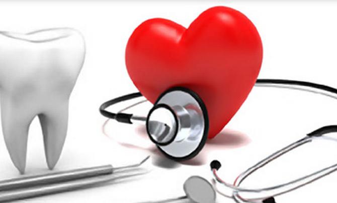 Periodontitis y riesgo cardiovascular