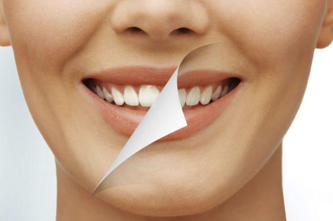 BLANQUEAMIENTOS DENTALES: todo lo que necesitas saber si quieres unos dientes más blancos.